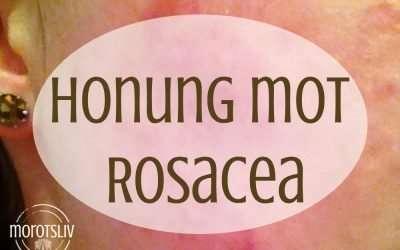 Honung som mirakelmedel mot rosacea